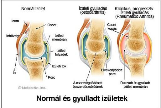 a jobb térd ízületi gyulladása