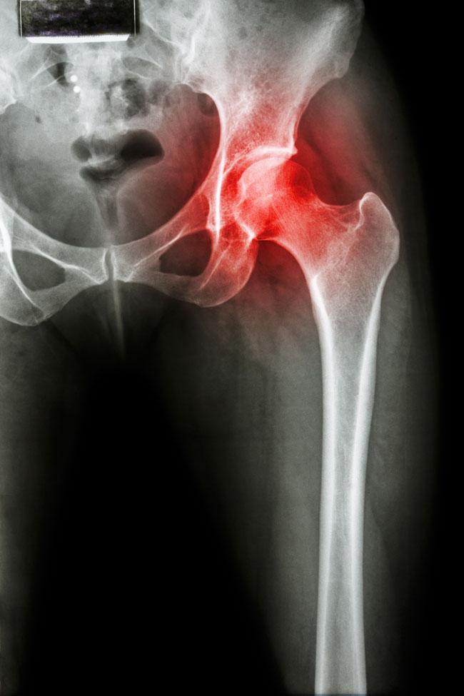 a csípő coxarthrosisának kezelése