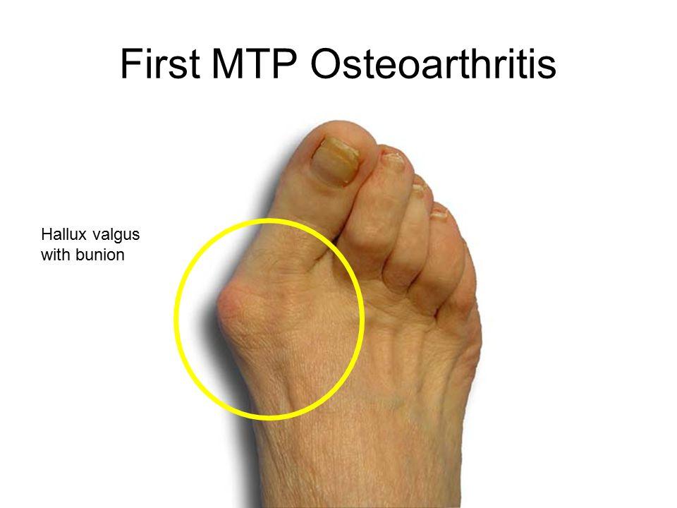 metatarsophalangeal osteoarthritis ízületi betegség köhögés