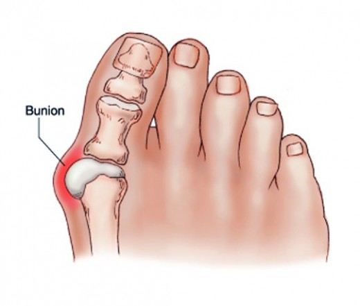 hogyan lehet kezelni a láb gyulladt ízületét