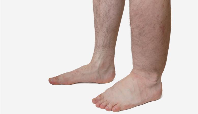 a jobb láb az ízületben fáj és