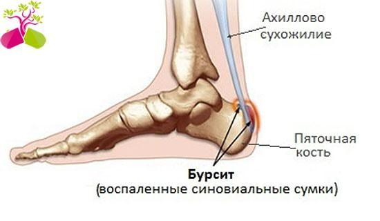 szegycsont clavicularis ízületi gyulladás a hüvelykujjízületek ízületi gyulladásának kezelése