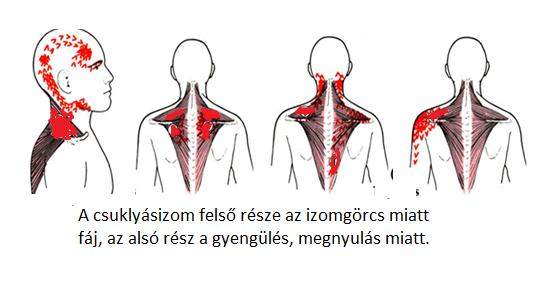 nyaki és vállfájdalom fájdalom ízületek kar nyak