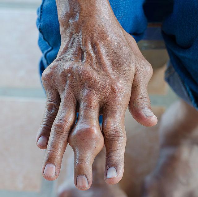 a bal kéz ízületi fájdalma okoz