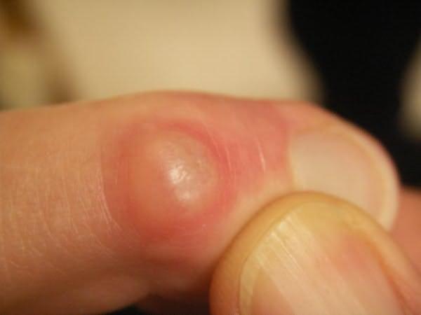 az ujjak lábának kézízületei fájnak, mit kell tenni