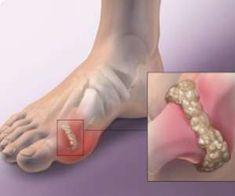 ízületi tofusz kezelés deformáló artrózis térdízületi kezelés