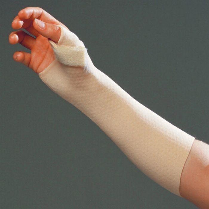 a csuklóízület kialakulása sérülés után a 2. fokú ízületi gyulladás gyógyul