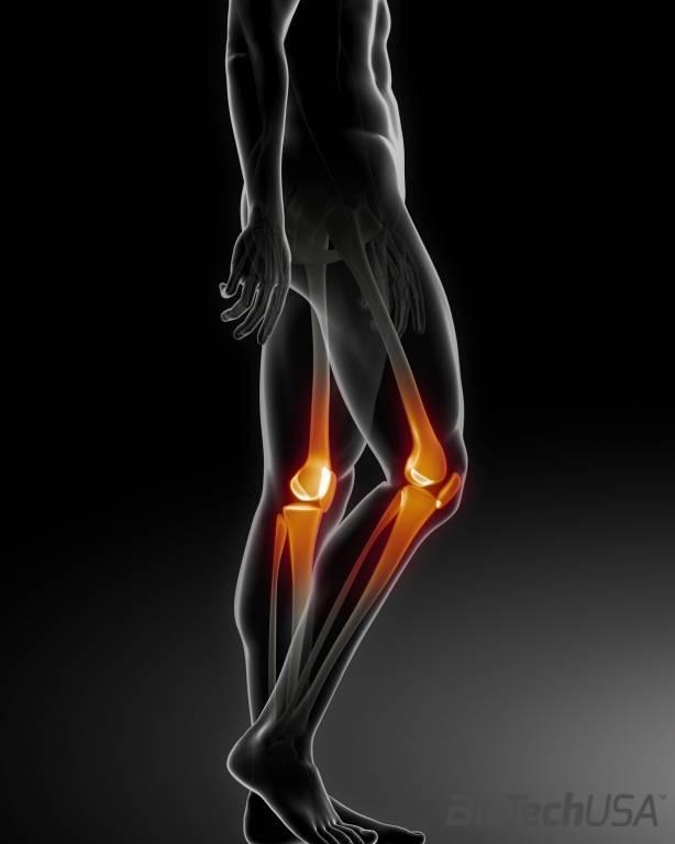térdízületi kezelés diéta otthon térdfájdalom kezelése
