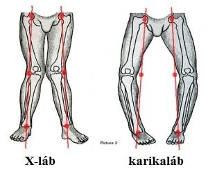 a láb posztraumás artrózisa őssejt-artrózis kezelés ár