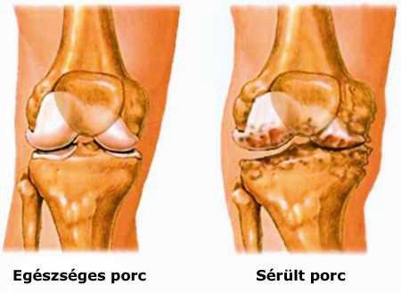 nem gyulladásos ízületi betegségek gyógyszerek artritisz artrózis kezelésére