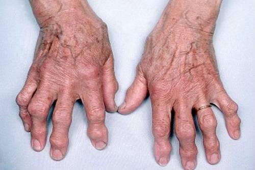 vándorló fájdalmak a kézízületekben.