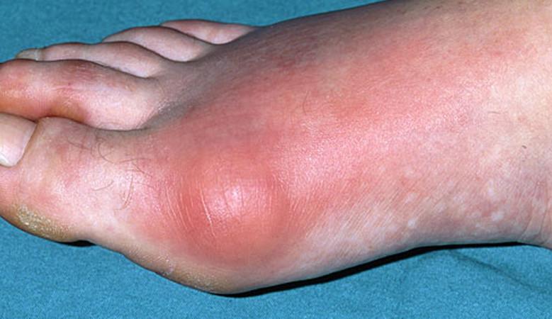 eszköz térd artrózisának kezelésére