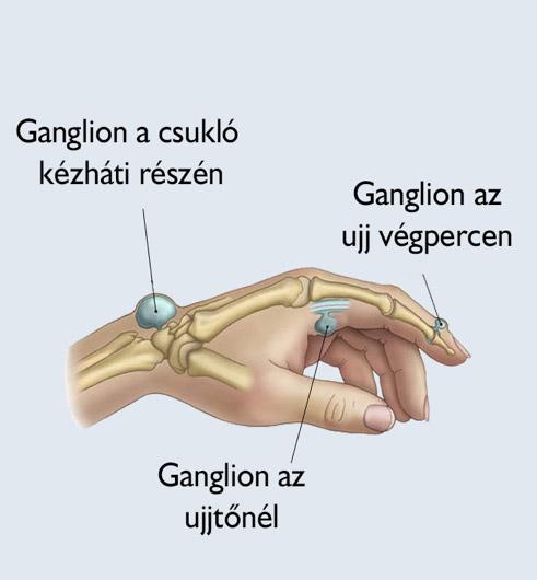 hogyan kell kezelni a kéz csuklóízületét degeneratív ízületi betegségek és kezelésük