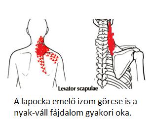 nyaki és vállfájdalom