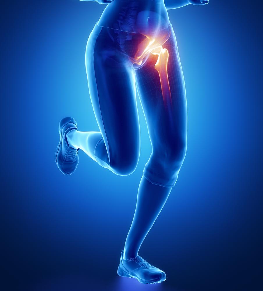 ízületi fájdalom és duzzadt comb akik a rheumatoid arthritis kezelésére