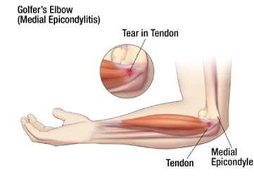 a csípőízület fáj, ha mozog