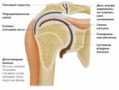 lysfranc-ízületi gyulladás