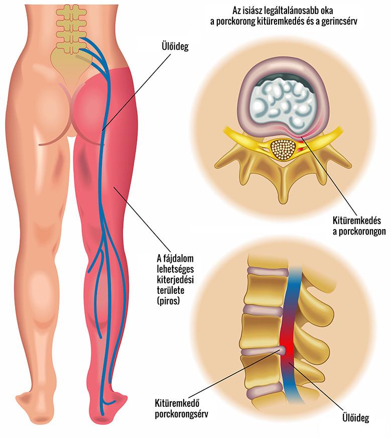 csípőízület fájdalom a bal oldalon