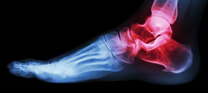 ízületi fájdalom szövődmény térd kezelés artrózis