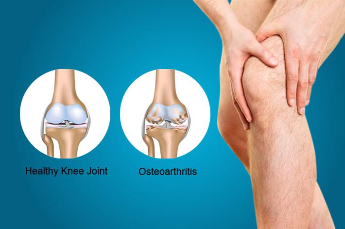 térdízületek fájnak séta után derékfájás és csípőízület coxarthrosis