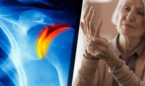 hogyan lehet kezelni serdülőkori térdízületi gyulladást vállízület artrózisa kórtörténet