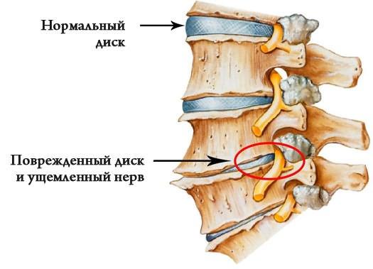 ízületi fájdalom ureaplasmosisból