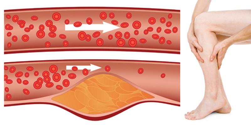 izuleti fajdalomra etkezesi zselatin mi köze az ízületi gyulladáshoz