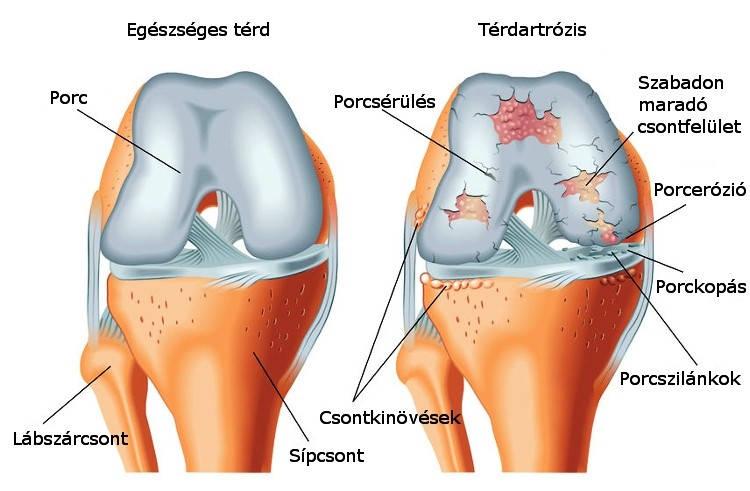 bizonyítékokon alapuló gyógyszer az artrózis kezelésére
