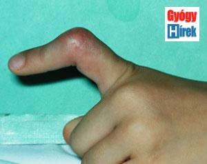 ujjízület sérülések