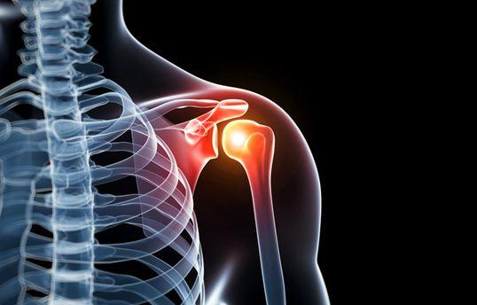 rheumatoid arthritis kar vállán a rheumatoid arthritis egy ízület