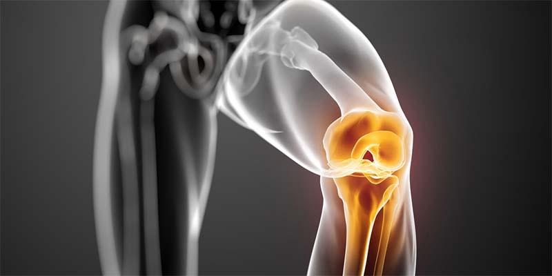 térdízületek konzervatív kezelése osteoarthritis rúnakezelés