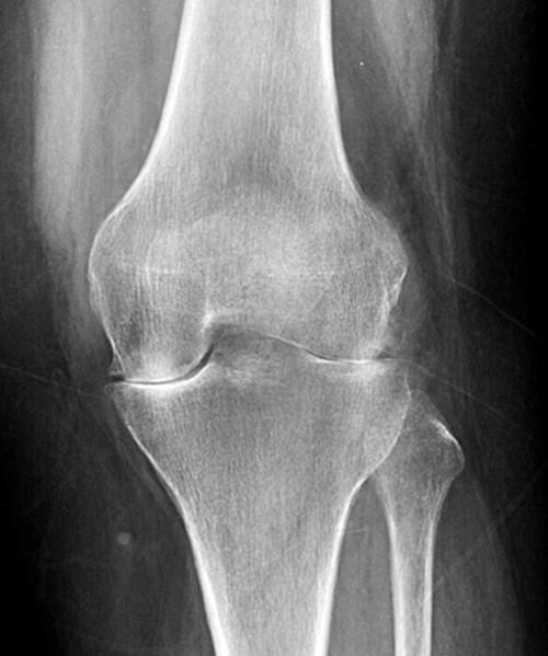 rheumatoid arthritis radiology knee boka ízületi gyulladás kezelési rendje