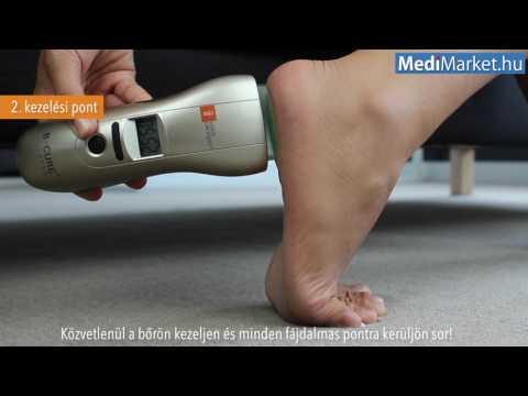 lézeres artrózis kezelés harmadik nap ízületi fájdalom diagnosztizálása