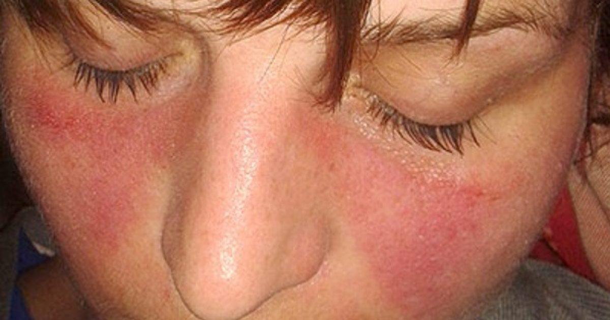butakov gyógyulási útjának ízületei hajlító fájdalom a bal könyökízületben