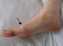 a boka akut, gennyes ízületi gyulladása rúnák ízületi betegségből