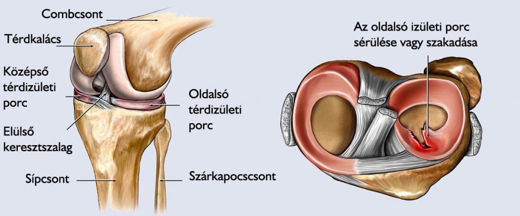 térdfájdalom elleni hatékony injekciók
