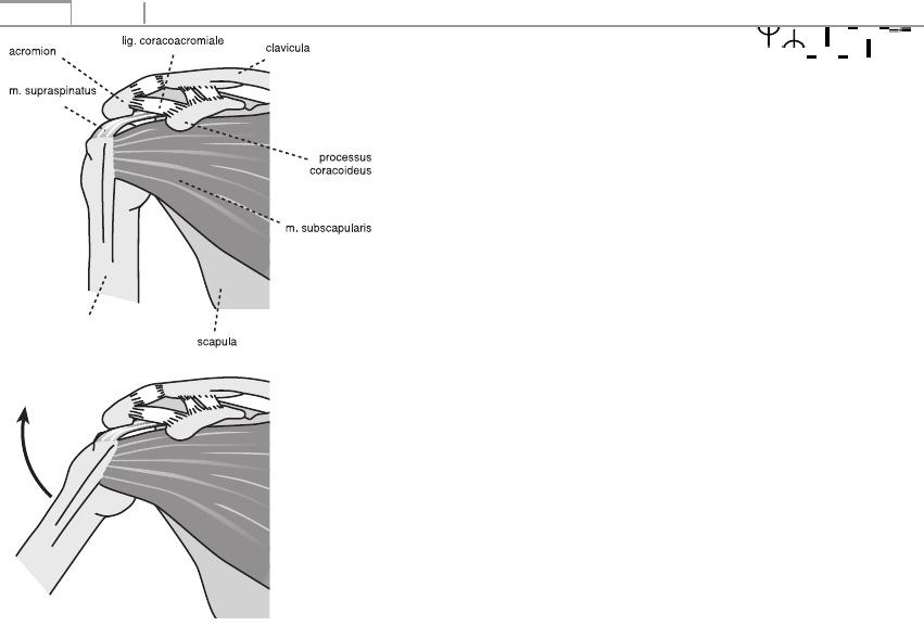 a második metakarpális ízület artrózisa