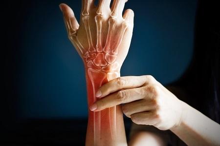 rheumatoid arthritis ízületek kefekezelése ízületi mézkrém
