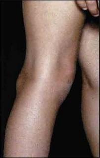 gyógyszer a térdízületben fáj a térdízületek, mint kezelni