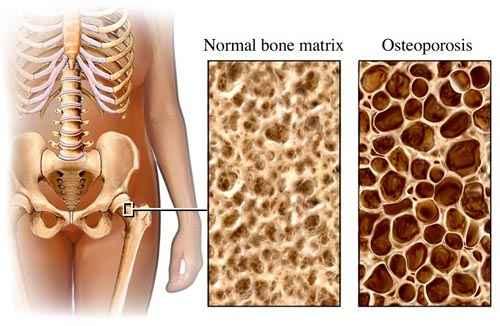 csontritkulás kezelése