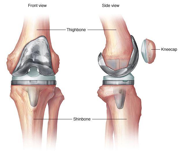fájó és éles térdízületek kezelése gerincvelő csontritkulás gyógyszerek