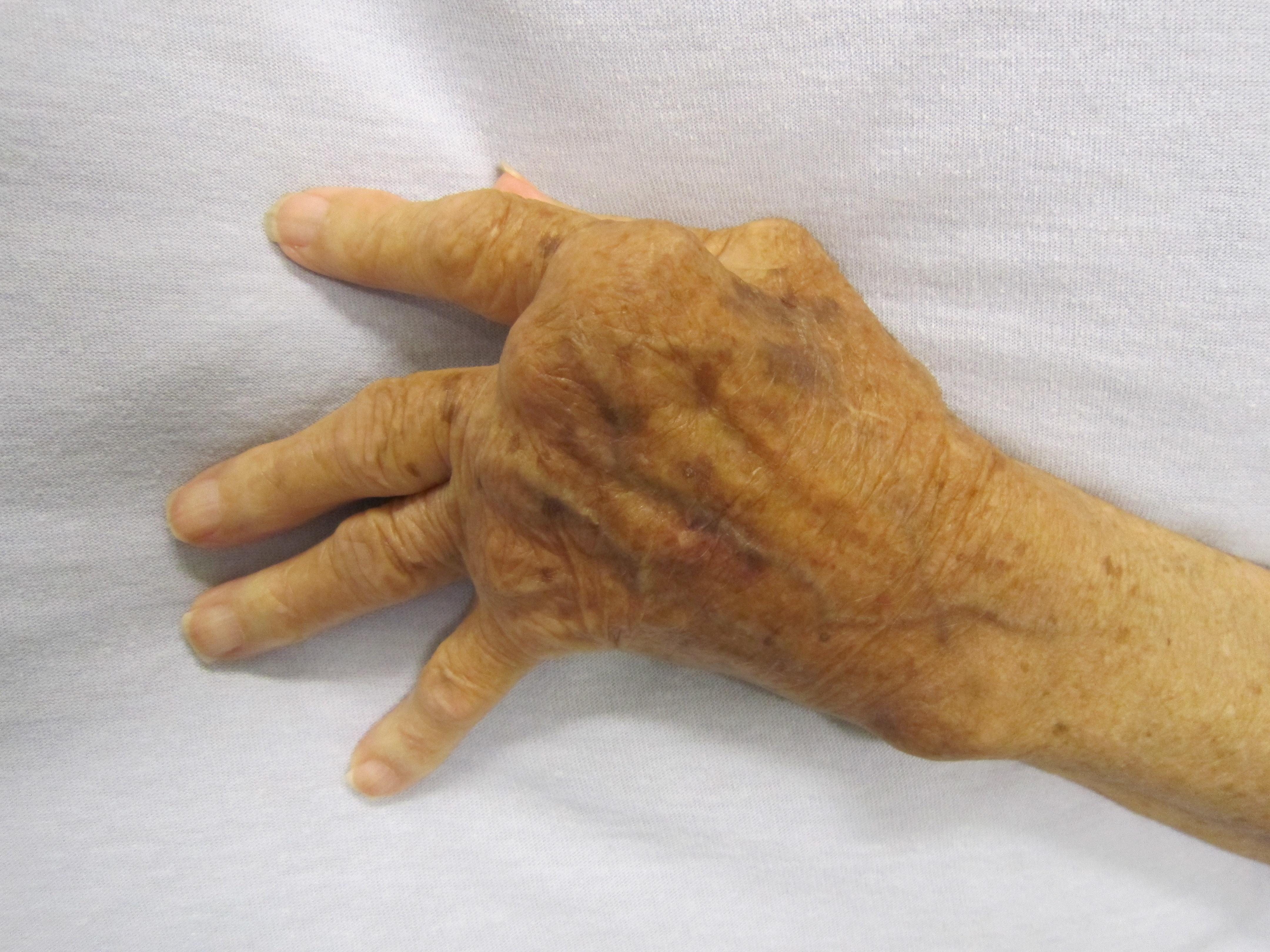 gyógyszer az ujjak artrózisának kezelésére ízületi fájdalom a kezén, mint kezelni
