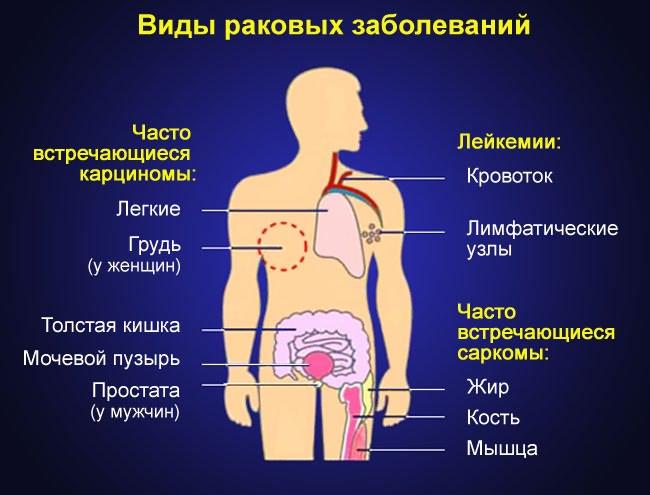 ízületi fájdalom stomatitis kezelés múmia artrózisával