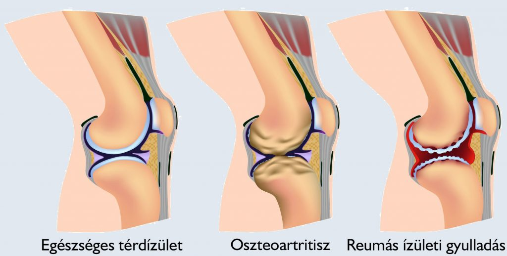 térdízületi kezelés periarthritis