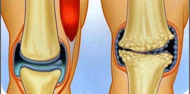 az artrózis kezelésében segít ízületi fájdalomgél ár