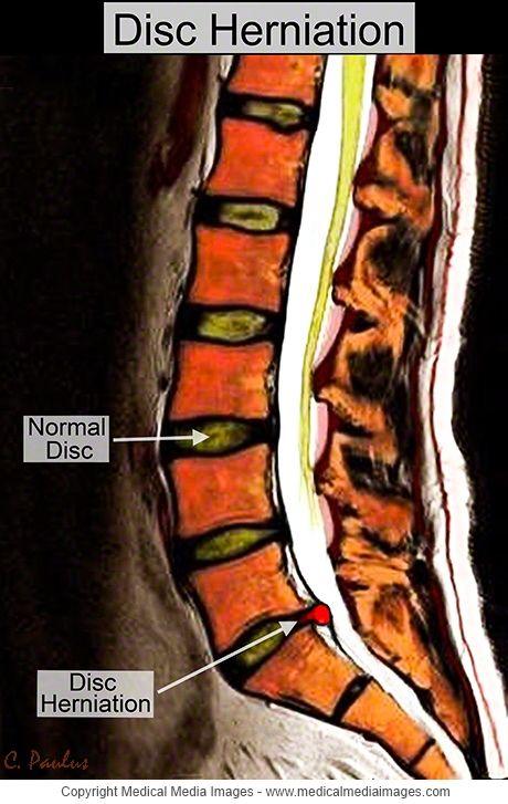 a körömízület gyulladása az ízületek artrózisának mértéke