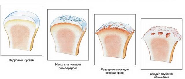 a térd artrózisának gyors kezelése