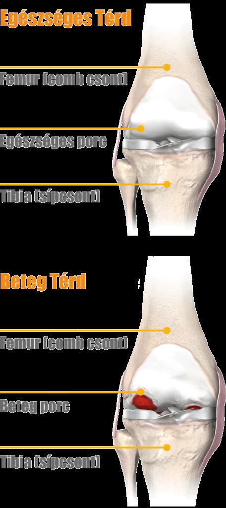 milgamma a térd artrózisának kezelésében