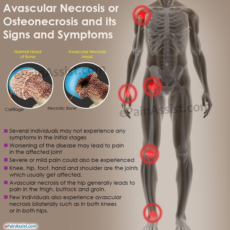 ízületi fájdalom megtöri a csontokat aki artróziskezelést ír elő