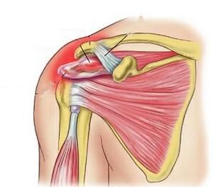 bordák ízületi kezelése krioterápia ízületi fájdalmak esetén